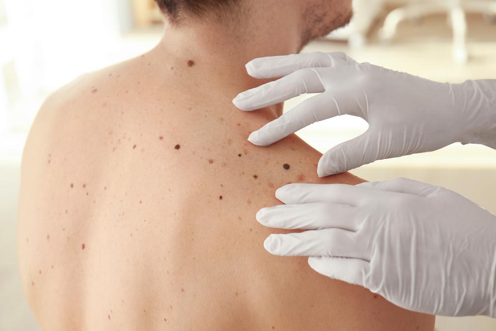 melanoma skin check